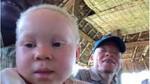 Escuela albinos Summa Humanitate Congo - Anwaydo